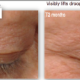 Eye serum before and after